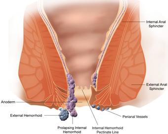 Quale succo è possibile dopo eliminazione di emorroidi